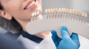 What are dental veneers?