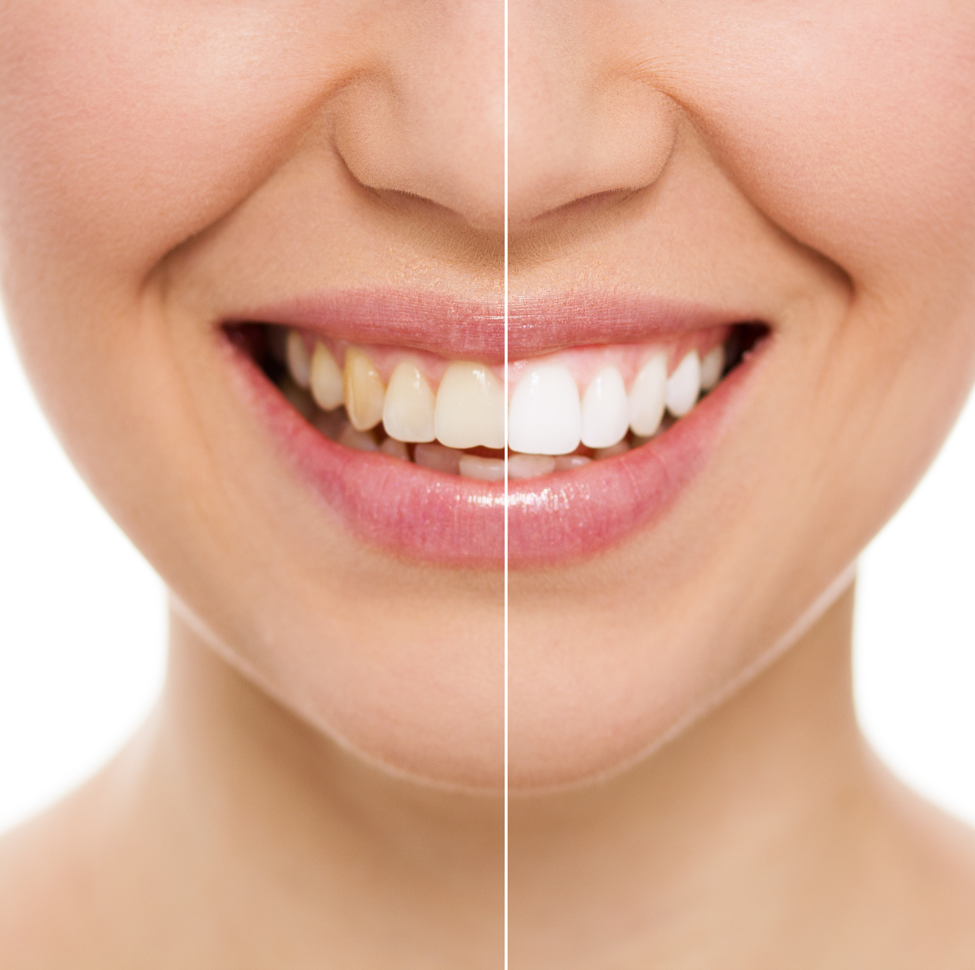 Experience Life Changing Cosmetic Dentistry With Precision Smiles Dental
