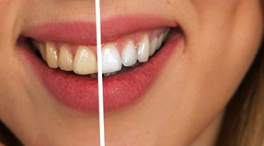 The true benefits of your new white teeth!