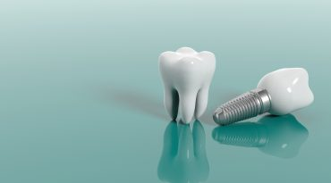 When Permanent Teeth Become Loose