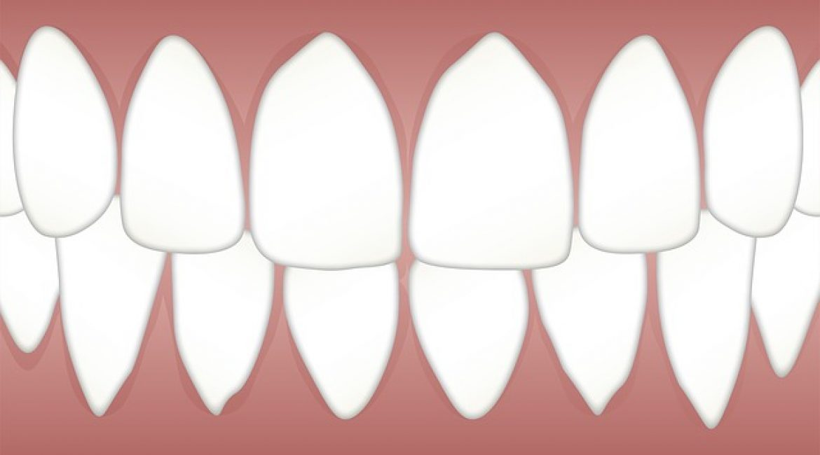 Removing Teeth for Orthodontic Treatment
