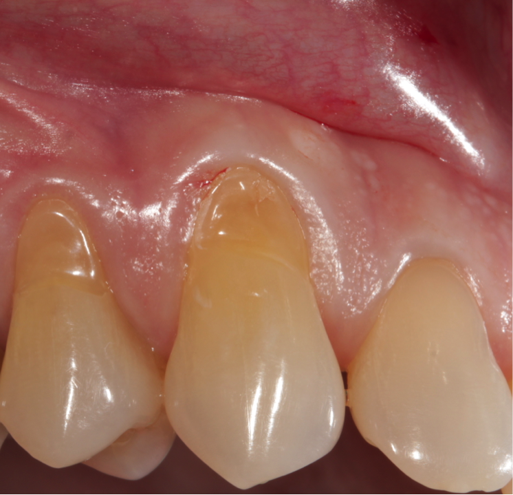 Gum Disease and Systemic Health