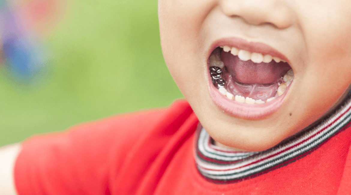 Stainless Steel Crowns For Your Child